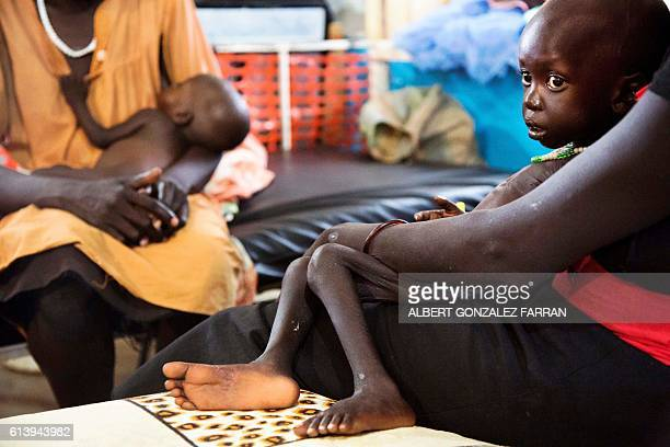 Wek Wol Wek who suffers acute malnutrition is assisted at the clinic run by Doctors without Borders in Aweil Northern Bahr al Ghazal South Sudan on...