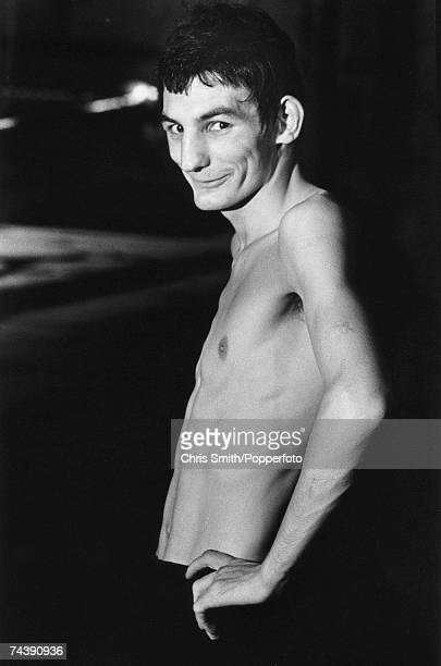 Welsh bantamweight boxer Johnny Owen Tredegar Known as the Matchstick Man Owen died after a title fight with Lupe Pinto