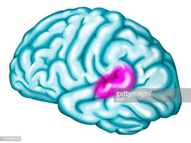 Wernicke's Area Location Of The Wernicke's Area In Purple In The Left Hemisphere Wernicke's Area Is Part Of The Auditory Cortex And Participates To...