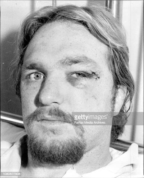 Western Suburbs Rugby League forward John McLeod recovering in Concord Hospital after fracturing his jaw in Saturday's game against North Sydney July...