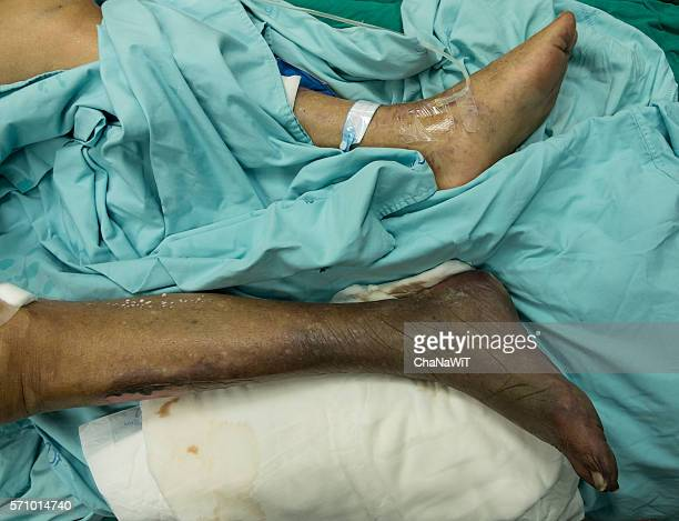 wet gangrene right foot - gangrene stock pictures, royalty-free photos & images