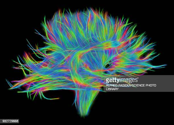 white matter fibres of the human brain, dsi scan - neurons stock photos and pictures