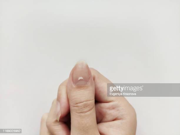 white spots on nail isolated on white background. disease leuconychia - fingernail stock pictures, royalty-free photos & images