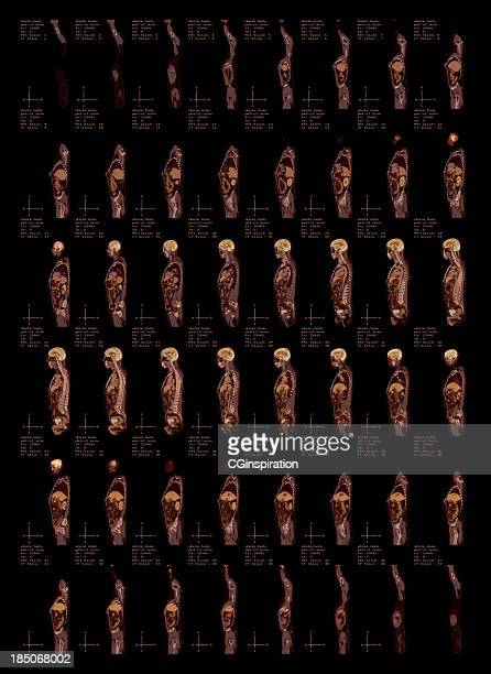 whole body pet-ct scan side view - cardiac muscle tissue stock photos and pictures