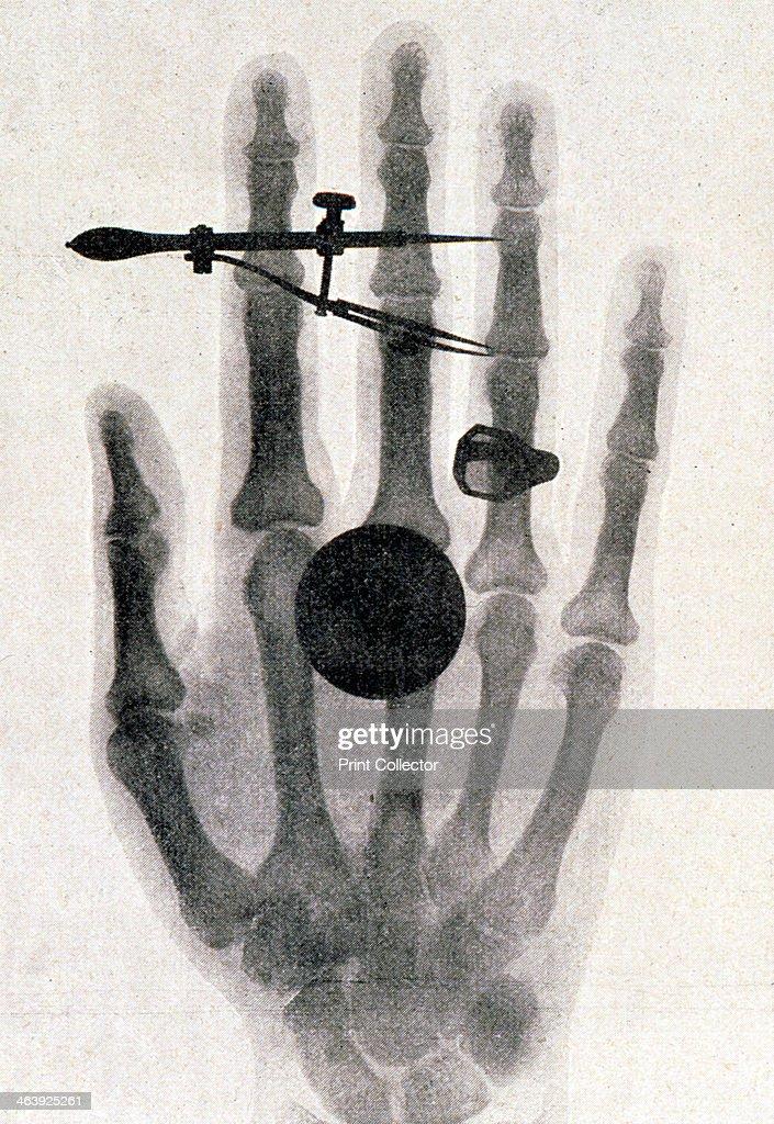 Wilhelm Roentgens røntgenfoto af sin hustrus hånd, 1896 til hans nyhedsfoto-7635