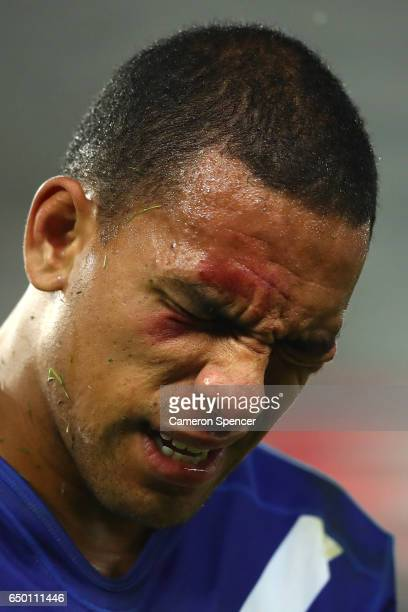 Will Hopoate of the Bulldogs leaves the field during the round two NRL match between the Sydney Roosters and the Canterbury Bulldogs at Allianz...