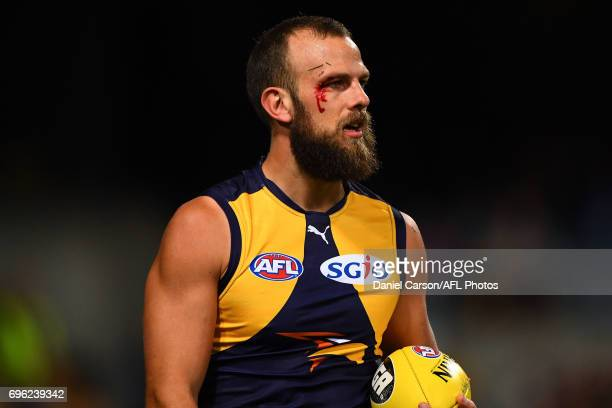 Will Schofield of the Eagles has a cut opened up above his eye during the 2017 AFL round 13 match between the West Coast Eagles and the Geelong Cats...