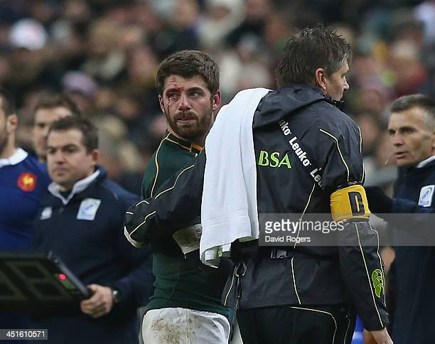 Willie le Roux of South Africa walks off the field after an eye injury during the International match between France and South Africa at Stade de...