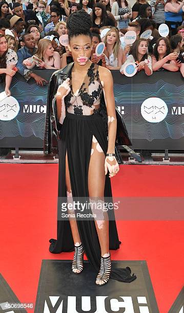 Winnie Harlow arrives at the 2014 MuchMusic Video Awards at MuchMusic HQ on June 15 2014 in Toronto Canada