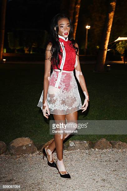 Winnie Harlow attends McKim Medal Gala In Rome at Villa Aurelia on June 9 2016 in Rome Italy