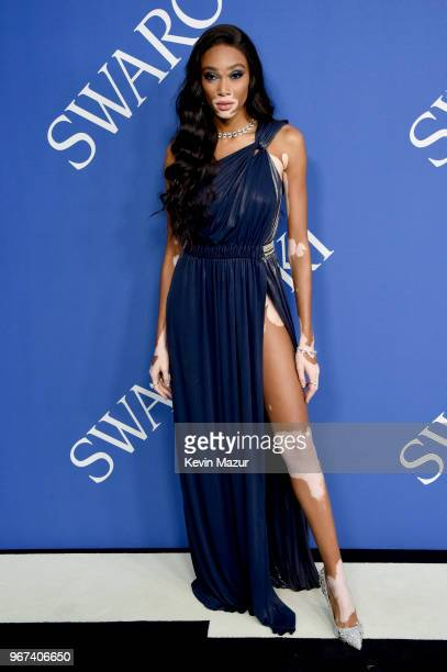 Winnie Harlow attends the 2018 CFDA Fashion Awards at Brooklyn Museum on June 4, 2018 in New York City.