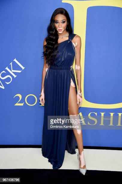 Winnie Harlow attends the 2018 CFDA Fashion Awards at Brooklyn Museum on June 4 2018 in New York City