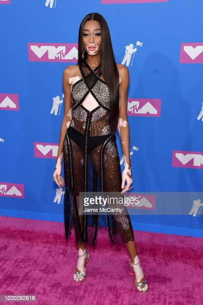 Winnie Harlow attends the 2018 MTV Video Music Awards at Radio City Music Hall on August 20 2018 in New York City