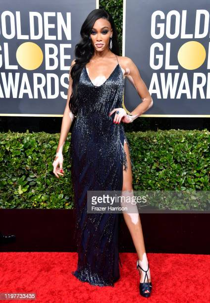 Winnie Harlow attends the 77th Annual Golden Globe Awards at The Beverly Hilton Hotel on January 05, 2020 in Beverly Hills, California.