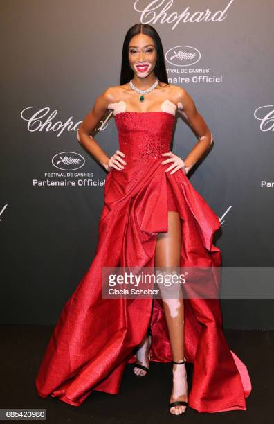 "Winnie Harlow attends the Chopard ""SPACE Party"" hosted by Chopard's copresident Caroline Scheufele and Rihanna at Port Canto on May 19 in Cannes..."