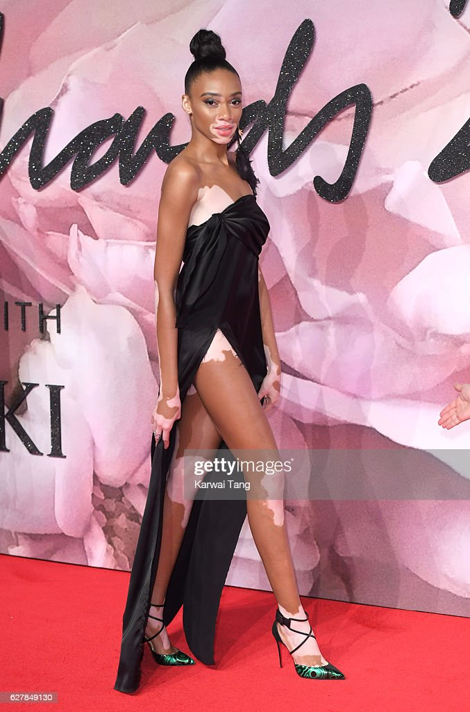 Winnie Harlow attends The Fashion Awards 2016 at the Royal Albert Hall on December 5, 2016 in London, United Kingdom.
