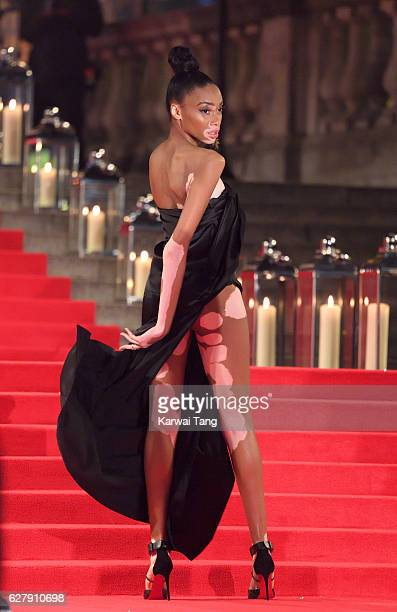 Winnie Harlow attends The Fashion Awards 2016 at the Royal Albert Hall on December 5 2016 in London United Kingdom
