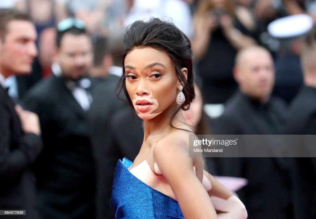 Winnie Harlow attends the 'Loveless (Nelyubov)' screening during the 70th annual Cannes Film Festival at Palais des Festivals on May 18, 2017 in Cannes, France.