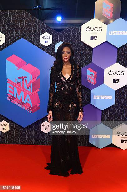 Winnie Harlow attends the MTV Europe Music Awards 2016 on November 6 2016 in Rotterdam Netherlands