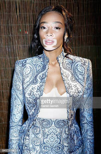 Winnie Harlow attends the Serpentine Summer Party cohosted by Tommy Hilfiger at the Serpentine Gallery on July 6 2016 in London England