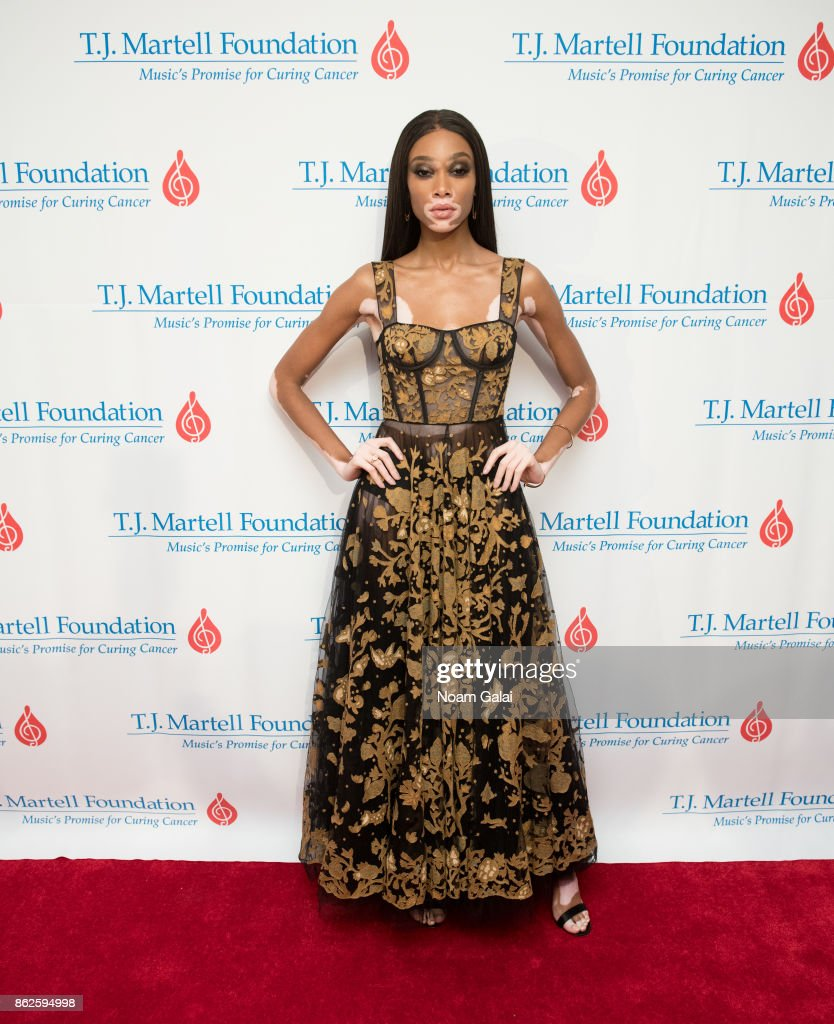 Winnie Harlow attends the T.J. Martell 42nd Annual New York Honors Gala at Guastavino's on October 17, 2017 in New York City.