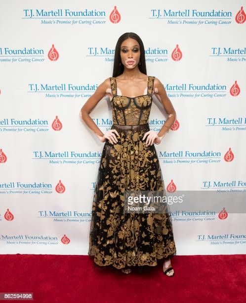 Winnie Harlow attends the TJ Martell 42nd Annual New York Honors Gala at Guastavino's on October 17 2017 in New York City