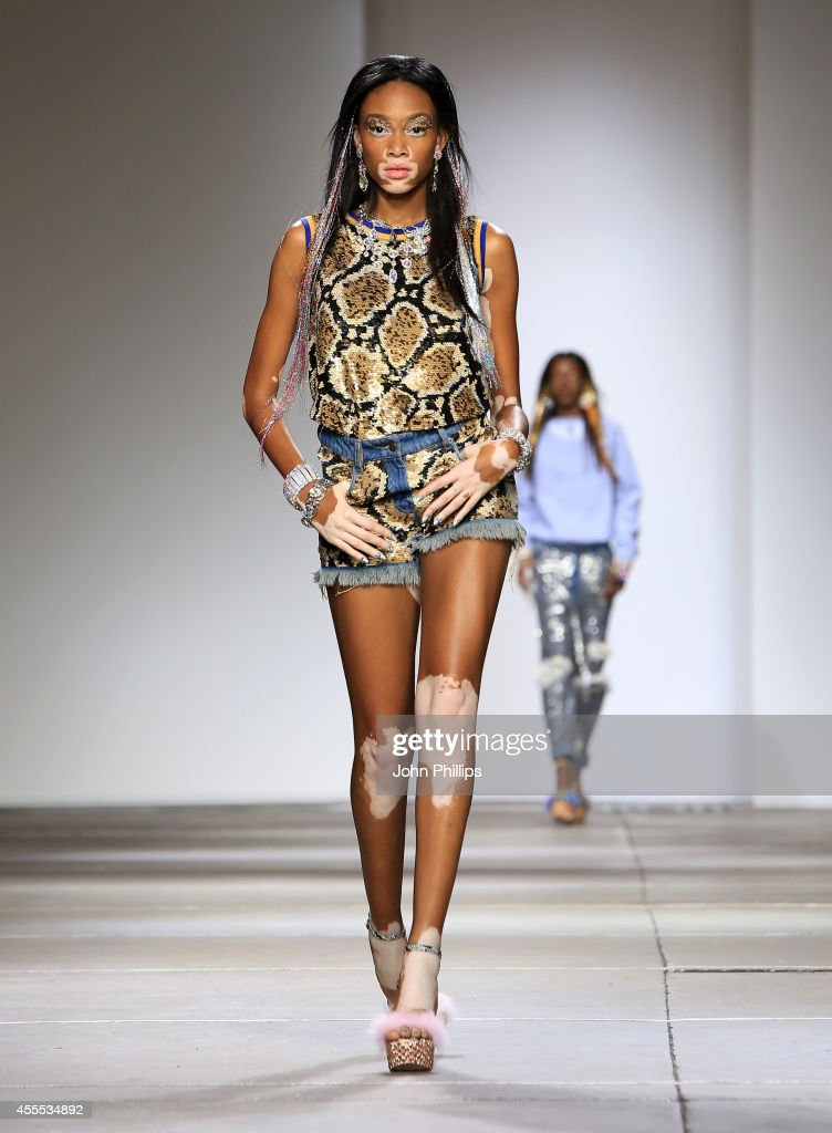 Winnie Harlow walks the runway at the Ashish show during London Fashion Week Spring Summer 2015 on September 16, 2014 in London, England.