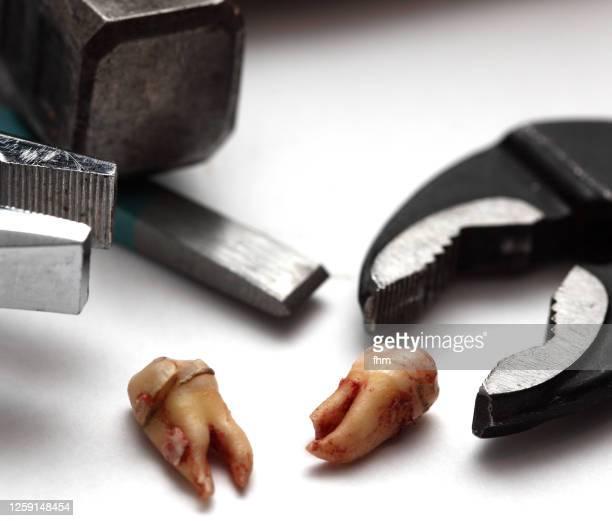 wisdom teeth removal - dentist horror stockfoto's en -beelden