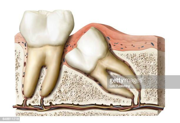 Wisdom Teeth Stock Photos And Pictures Getty Images