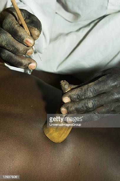 Witch doctor using goats horn to stimulate form of blood letting to treat patient complaining of back pain While traditional medicine still holds...