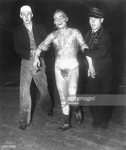 With all his clothes and most of the flesh burned from his body one of the few survivors of the zeppelin Hindenberg is led from the scene The giant...
