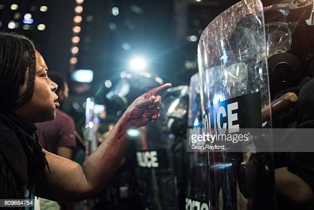 With blood covering her hand and arm a woman points at a police officer on September 21 2016 in Charlotte NC The North Carolina governor has declared...