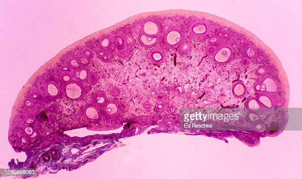 ovary (cat) with developing ovarian follices, some are graafian follicles with oocytes (eggs) 2.5x - ed reschke photography photos et images de collection
