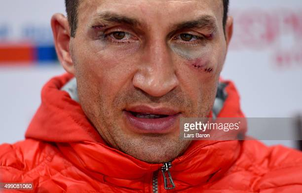 Wladimir Klitschko looks on at the press conference after he losed his World Heavyweight title to Tyson Fury after the IBF IBO WBA WBO Heavyweight...