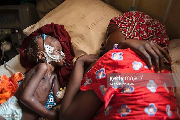 TOPSHOT A woman and a young girl young child suffering from severe malnutrition sleep on a bed in the ICU ward at the InPatient Therapeutic Feeding...