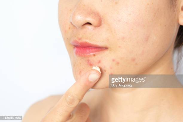 woman applying acne cream on her face for solving acne inflammation (papule and pustule) on her face. - abscess stock photos and pictures