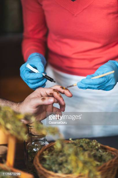 woman applying homeopathic cannabis oil medicine to an injured man's hand - alternative lifestyle stock pictures, royalty-free photos & images