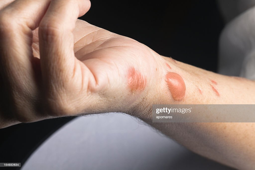 Woman arm with actual second degree burn : Stock Photo