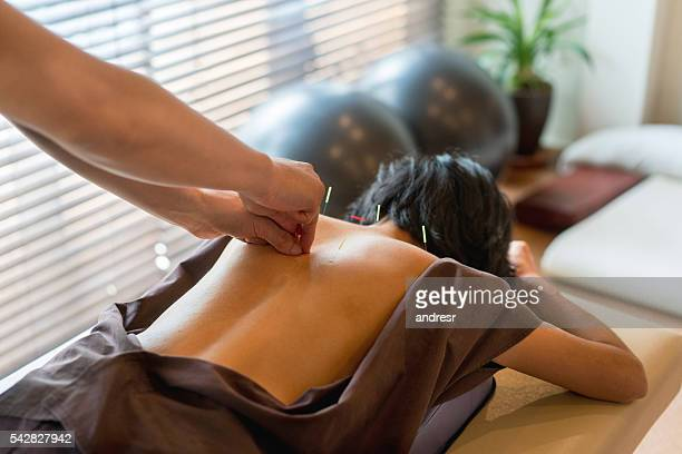 woman at the acupuncturist - alternatieve geneeswijzen stockfoto's en -beelden
