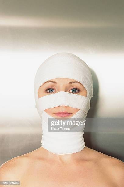 Woman bandaged up after a facelift