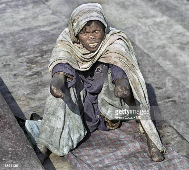 CONTENT] Woman begging with severe Leprosy Old Delhi Jama Mashid India