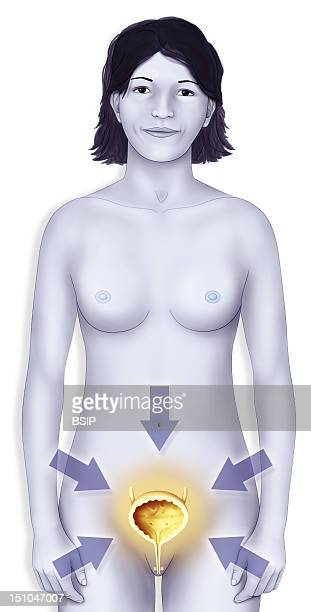 Woman BladderIllustration Of A Healthy Or Affected Bladder Cystitis Cancer Lithiasis