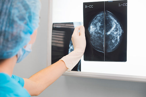woman doctor or nurse in surgery outfit is holding a mammogram in front of x-ray illuminator 839295568