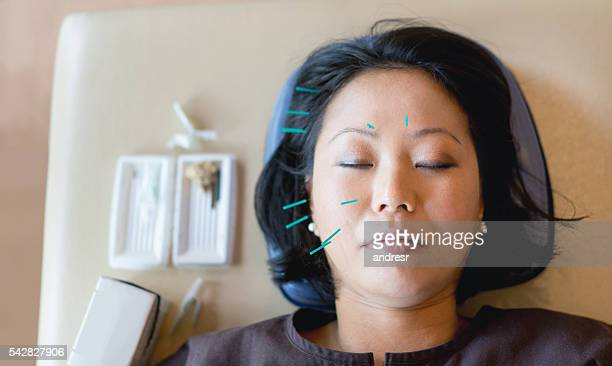 woman getting acupuncture therapy - acupuncture stock pictures, royalty-free photos & images