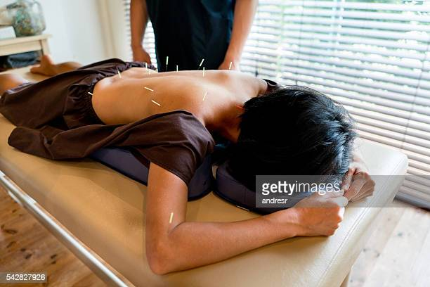 woman getting acupuncture therapy - accupuncture stock pictures, royalty-free photos & images