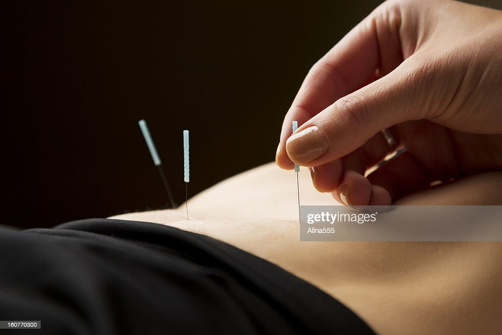 Woman getting acupuncture treatment at the spa : Stock Photo