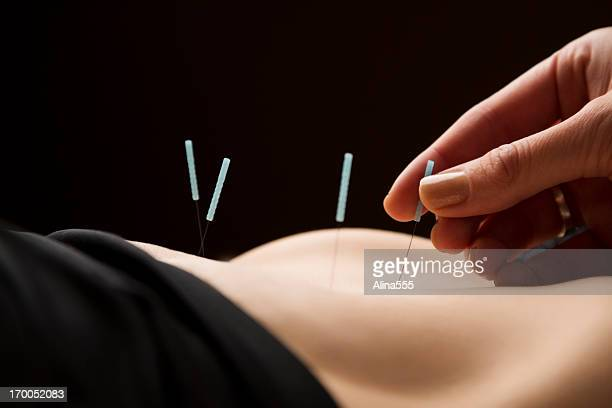 woman getting acupuncture treatment at the spa - acupuncture needle stock pictures, royalty-free photos & images