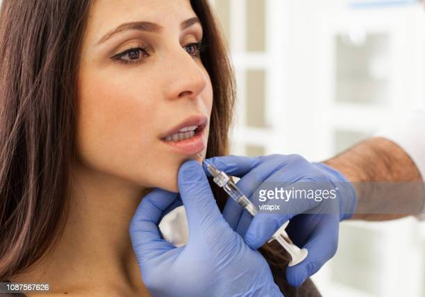woman getting lip injections - botox stock pictures, royalty-free photos & images