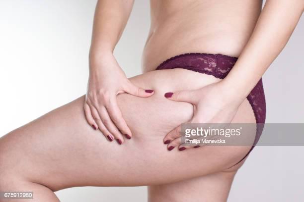 woman grabbing at her buttocks - cellulite foto e immagini stock
