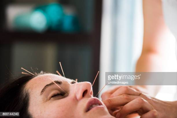 woman having acupuncture treatment - acupuncture stock pictures, royalty-free photos & images